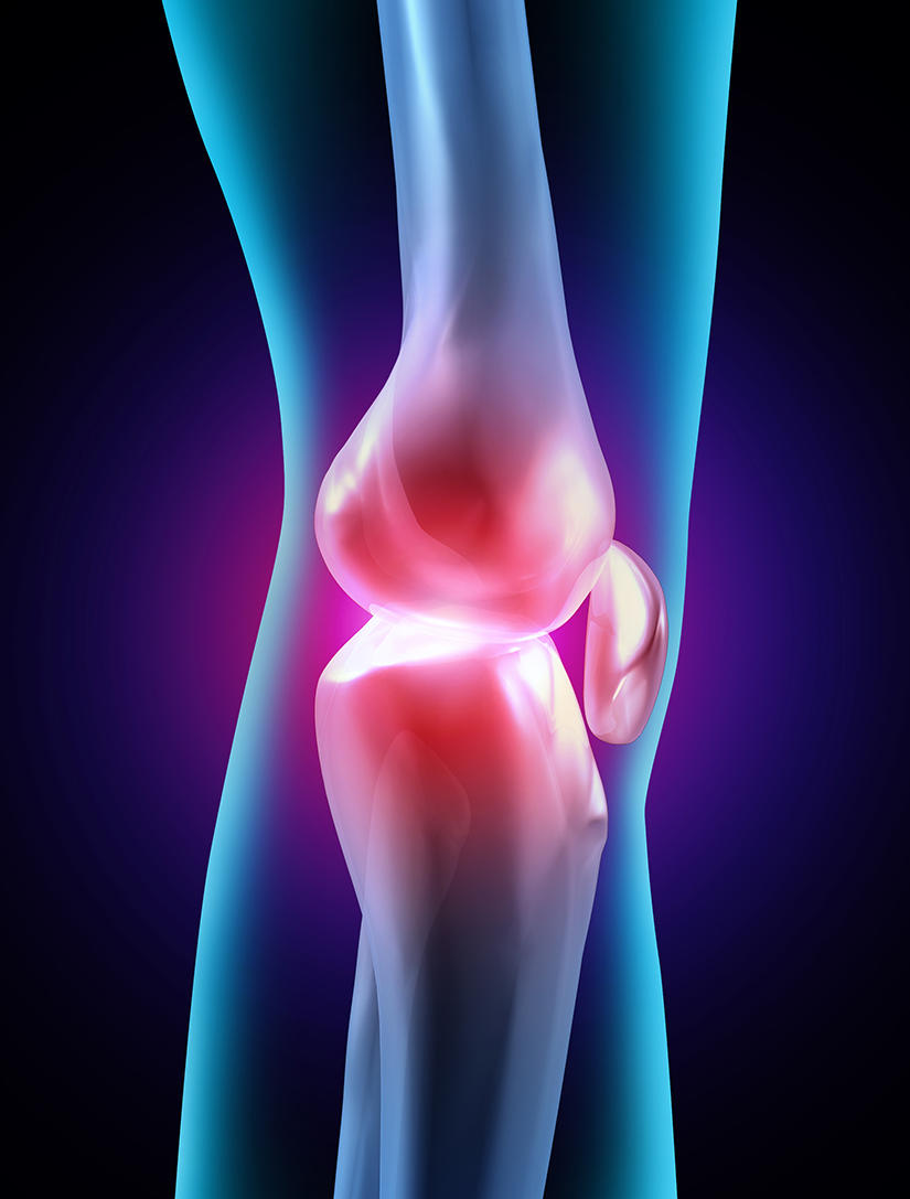 knee joint inflammed